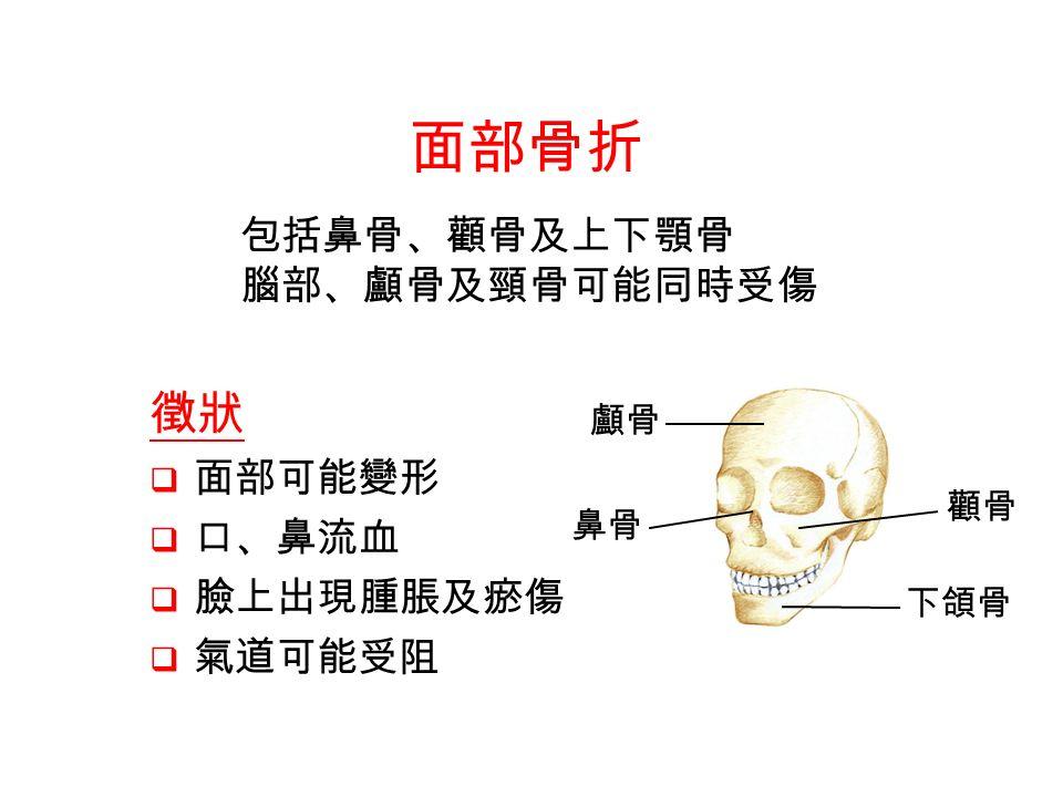 鼻骨 下頜骨 顱骨 顴骨 面部骨折 徵狀  面部可能變形  口、鼻流血  臉上出現腫脹及瘀傷  氣道可能受阻 包括鼻骨、顴骨及上下顎骨 腦部、顱骨及頸骨可能同時受傷