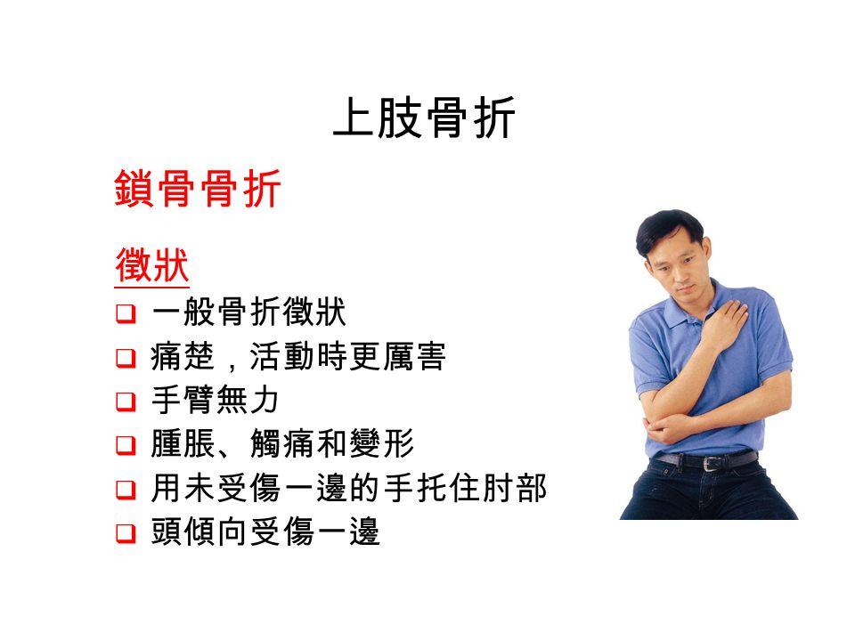 鎖骨骨折 徵狀  一般骨折徵狀  痛楚,活動時更厲害  手臂無力  腫脹、觸痛和變形  用未受傷一邊的手托住肘部  頭傾向受傷一邊 上肢骨折