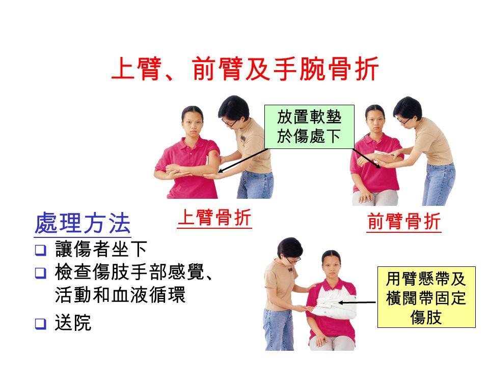 處理方法  讓傷者坐下  檢查傷肢手部感覺、 活動和血液循環  送院 上臂骨折 前臂骨折 放置軟墊 於傷處下 用臂懸帶及 橫闊帶固定 傷肢 上臂、前臂及手腕骨折