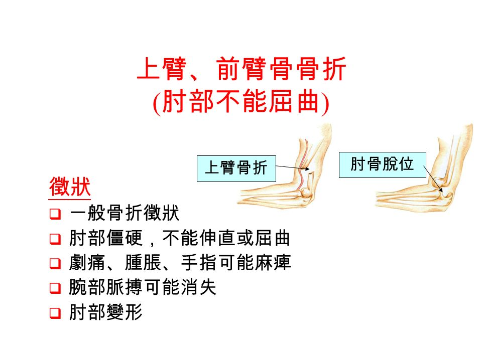 徵狀  一般骨折徵狀  肘部僵硬,不能伸直或屈曲  劇痛、腫脹、手指可能麻痺  腕部脈搏可能消失  肘部變形 上臂骨折 肘骨脫位 上臂、前臂骨骨折 ( 肘部不能屈曲 )