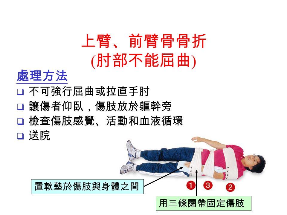 處理方法  不可強行屈曲或拉直手肘  讓傷者仰臥,傷肢放於軀幹旁  檢查傷肢感覺、活動和血液循環  送院 用三條闊帶固定傷肢 置軟墊於傷肢與身體之間 上臂、前臂骨骨折 ( 肘部不能屈曲 )