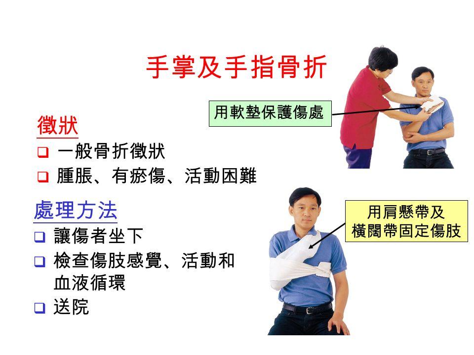 處理方法  讓傷者坐下  檢查傷肢感覺、活動和 血液循環  送院 用肩懸帶及 橫闊帶固定傷肢 用軟墊保護傷處 手掌及手指骨折 徵狀  一般骨折徵狀  腫脹、有瘀傷、活動困難