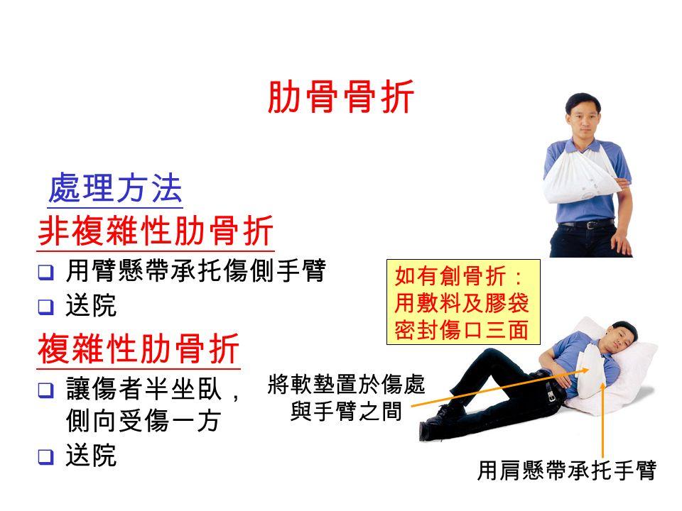 複雜性肋骨折  讓傷者半坐臥, 側向受傷一方  送院 將軟墊置於傷處 與手臂之間 用肩懸帶承托手臂 如有創骨折: 用敷料及膠袋 密封傷口三面 肋骨骨折 處理方法 非複雜性肋骨折  用臂懸帶承托傷側手臂  送院