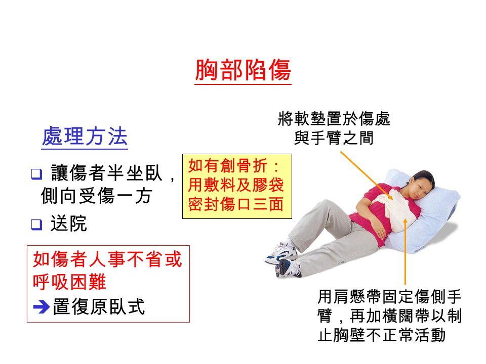  讓傷者半坐臥, 側向受傷一方  送院 將軟墊置於傷處 與手臂之間 用肩懸帶固定傷側手 臂,再加橫闊帶以制 止胸壁不正常活動 如有創骨折: 用敷料及膠袋 密封傷口三面 如傷者人事不省或 呼吸困難  置復原臥式 胸部陷傷 處理方法