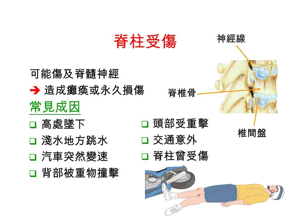 常見成因  高處墜下  淺水地方跳水  汽車突然變速  背部被重物撞擊 神經線 脊椎骨 椎間盤 脊柱受傷 可能傷及脊髓神經  造成癱瘓或永久損傷  頭部受重擊  交通意外  脊柱曾受傷