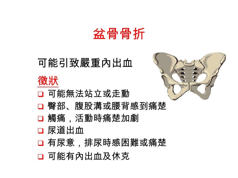 徵狀  可能無法站立或走動  臀部、腹股溝或腰背感到痛楚  觸痛,活動時痛楚加劇  尿道出血  有尿意,排尿時感困難或痛楚  可能有內出血及休克 盆骨骨折 可能引致嚴重內出血