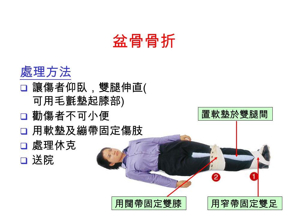 置軟墊於雙腿間 用闊帶固定雙膝用窄帶固定雙足 處理方法  讓傷者仰臥,雙腿伸直 ( 可用毛氈墊起膝部 )  勸傷者不可小便  用軟墊及繃帶固定傷肢  處理休克  送院 盆骨骨折