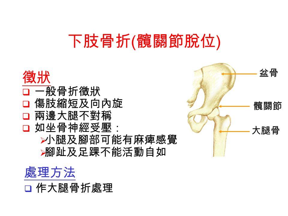 盆骨 髖關節 大腿骨 徵狀  一般骨折徵狀  傷肢縮短及向內旋  兩邊大腿不對稱  如坐骨神經受壓:  小腿及腳部可能有麻痺感覺  腳趾及足踝不能活動自如 下肢骨折 ( 髖關節脫位 ) 處理方法  作大腿骨折處理