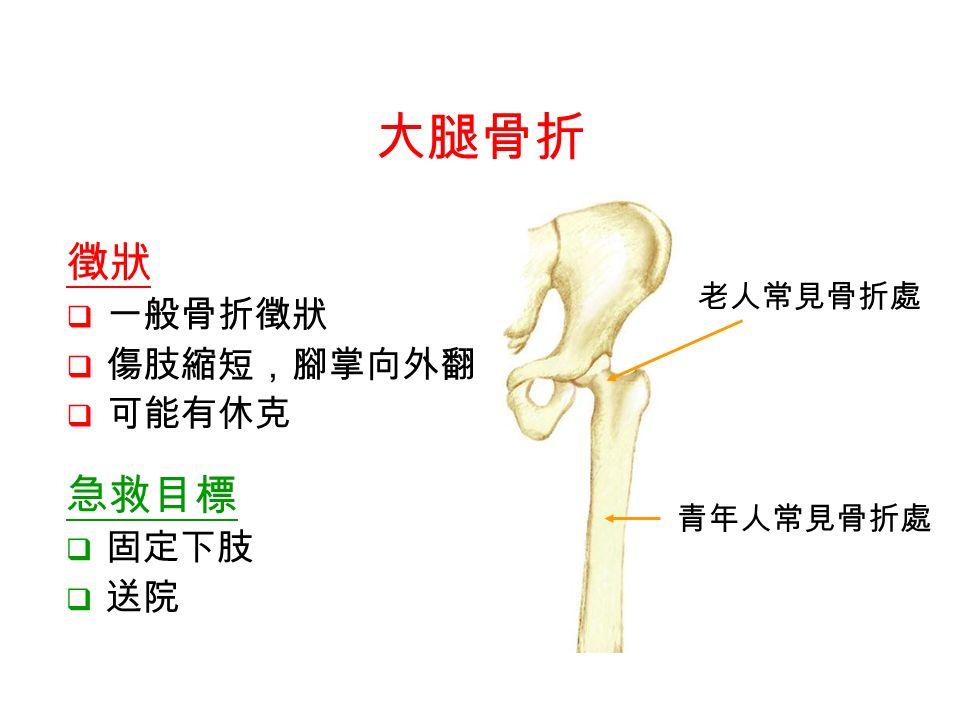 老人常見骨折處 青年人常見骨折處 徵狀  一般骨折徵狀  傷肢縮短,腳掌向外翻  可能有休克 大腿骨折 急救目標  固定下肢  送院