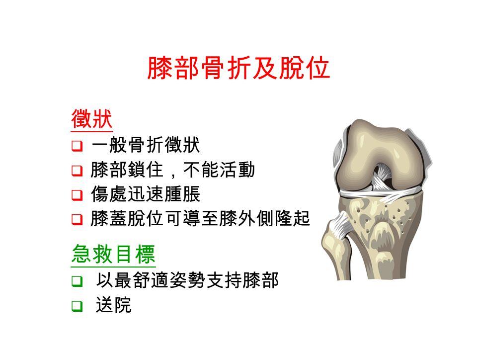 徵狀  一般骨折徵狀  膝部鎖住,不能活動  傷處迅速腫脹  膝蓋脫位可導至膝外側隆起 膝部骨折及脫位 急救目標  以最舒適姿勢支持膝部  送院