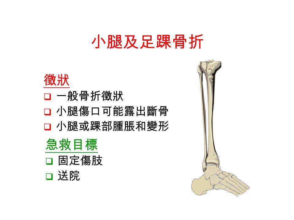 急救目標  固定傷肢  送院 小腿及足踝骨折 徵狀  一般骨折徵狀  小腿傷口可能露出斷骨  小腿或踝部腫脹和變形