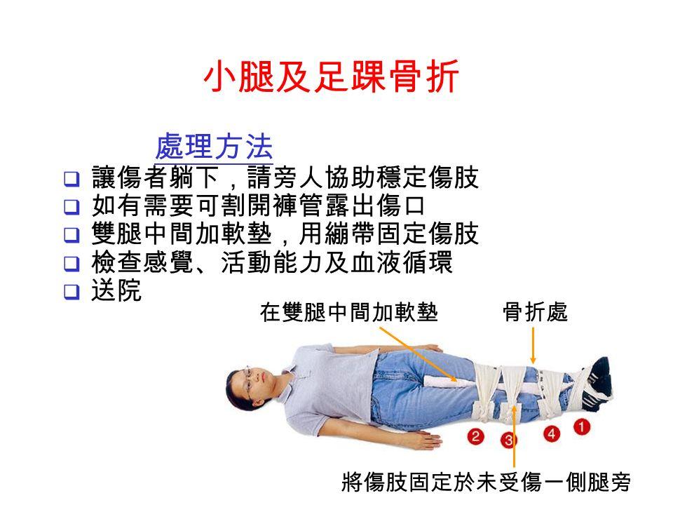 在雙腿中間加軟墊 骨折處 將傷肢固定於未受傷一側腿旁 處理方法  讓傷者躺下,請旁人協助穩定傷肢  如有需要可割開褲管露出傷口  雙腿中間加軟墊,用繃帶固定傷肢  檢查感覺、活動能力及血液循環  送院 小腿及足踝骨折