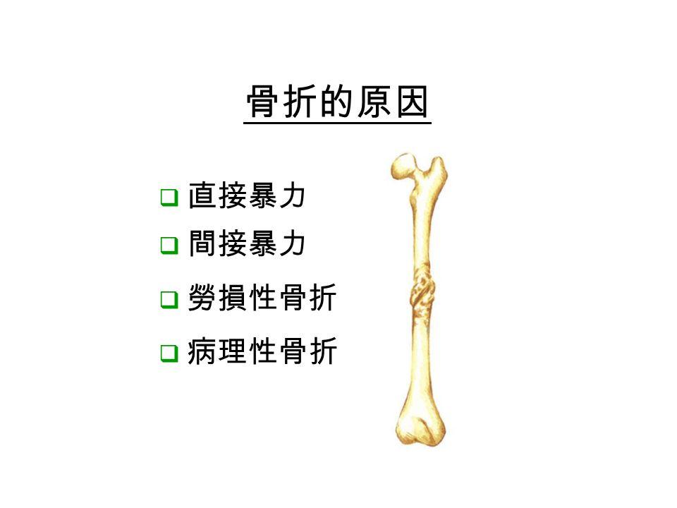  直接暴力  間接暴力  勞損性骨折  病理性骨折 骨折的原因