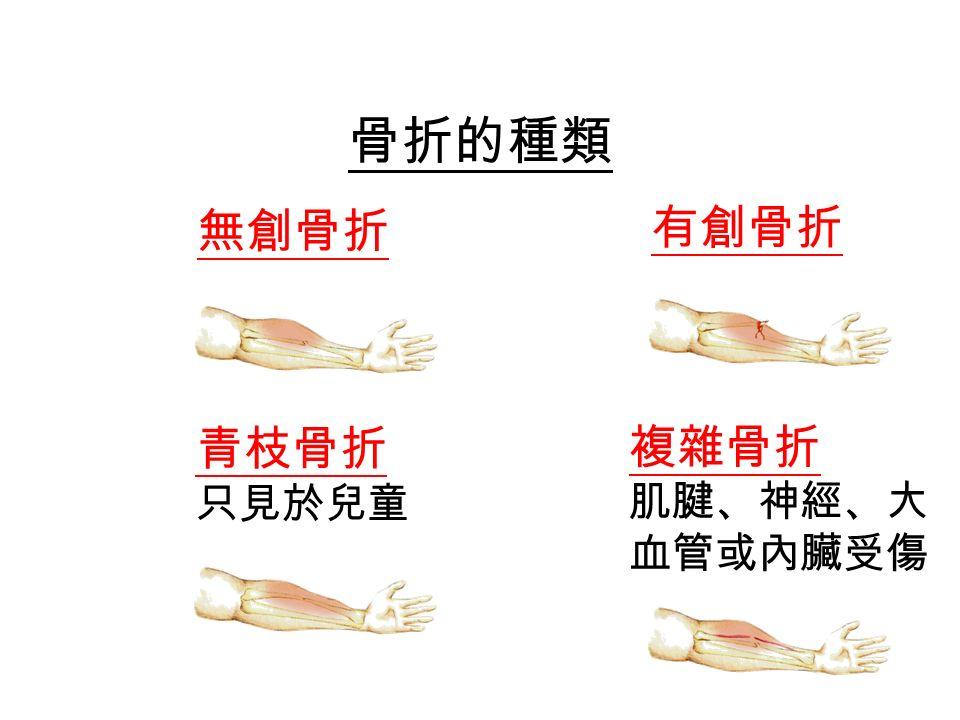 骨折的種類 無創骨折 有創骨折 青枝骨折 只見於兒童 複雜骨折 肌腱、神經、大 血管或內臟受傷