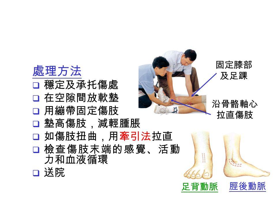 處理方法  穩定及承托傷處  在空隙間放軟墊  用繃帶固定傷肢  墊高傷肢,減輕腫脹  如傷肢扭曲,用牽引法拉直  檢查傷肢末端的感覺、活動能 力和血液循環  送院 固定膝部 及足踝 沿骨骼軸心 拉直傷肢 足背動脈 脛後動脈