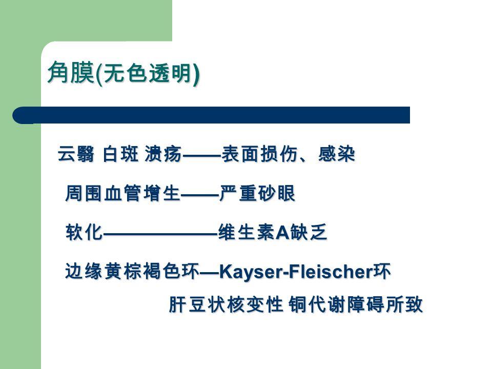 角膜 ( 无色透明 ) 云翳 白斑 溃疡 —— 表面损伤、感染 周围血管增生 —— 严重砂眼 软化 —————— 维生素 A 缺乏 边缘黄棕褐色环 —Kayser-Fleischer 环 云翳 白斑 溃疡 —— 表面损伤、感染 周围血管增生 —— 严重砂眼 软化 —————— 维生素 A 缺乏 边缘黄棕褐色环 —Kayser-Fleischer 环 肝豆状核变性 铜代谢障碍所致 肝豆状核变性 铜代谢障碍所致