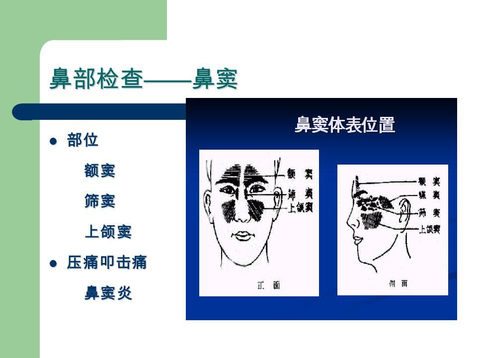 鼻部检查 —— 鼻窦 部位 部位 额窦 额窦 筛窦 筛窦 上颌窦 上颌窦 压痛叩击痛 压痛叩击痛 鼻窦炎 鼻窦炎