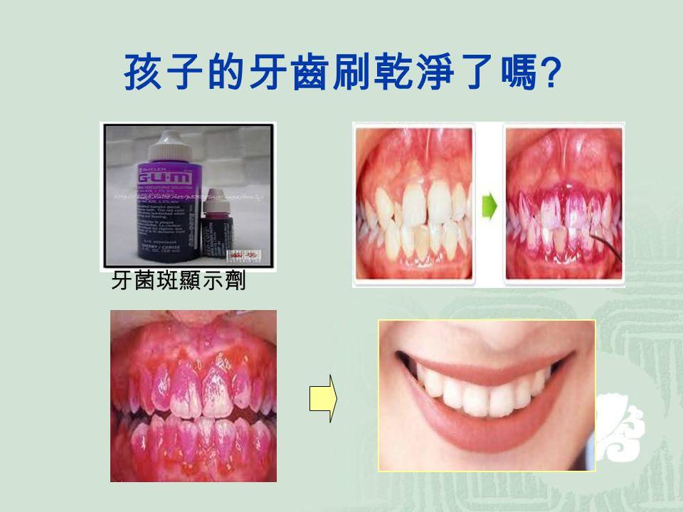 孩子的牙齒刷乾淨了嗎 牙菌斑顯示劑