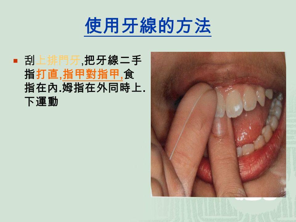 使用牙線的方法  刮上排門牙, 把牙線二手 指打直, 指甲對指甲, 食 指在內. 姆指在外同時 上. 下運動