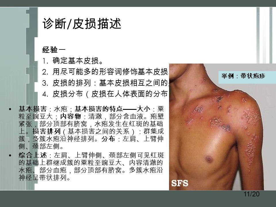 11/20 诊断 / 皮损描述 经验一 1. 确定基本皮损。 2. 用尽可能多的形容词修饰基本皮损。 3.