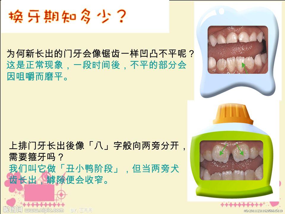 为何新长出的门牙会像锯齿一样凹凸不平呢? 这是正常现象,一段时间後,不平的部分会 因咀嚼而磨平。 上排门牙长出後像「八」字般向两旁分开, 需要箍牙吗? 我们叫它做「丑小鸭阶段」,但当两旁犬 齿长出,罅隙便会收窄。