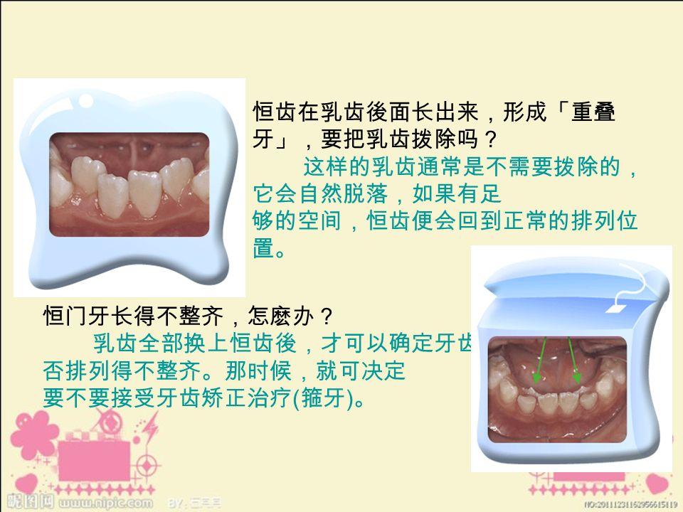 恒齿在乳齿後面长出来,形成「重叠 牙」,要把乳齿拨除吗? 这样的乳齿通常是不需要拨除的, 它会自然脱落,如果有足 够的空间,恒齿便会回到正常的排列位 置。 恒门牙长得不整齐,怎麽办? 乳齿全部换上恒齿後,才可以确定牙齿是 否排列得不整齐。那时候,就可决定 要不要接受牙齿矫正治疗 ( 箍牙 ) 。