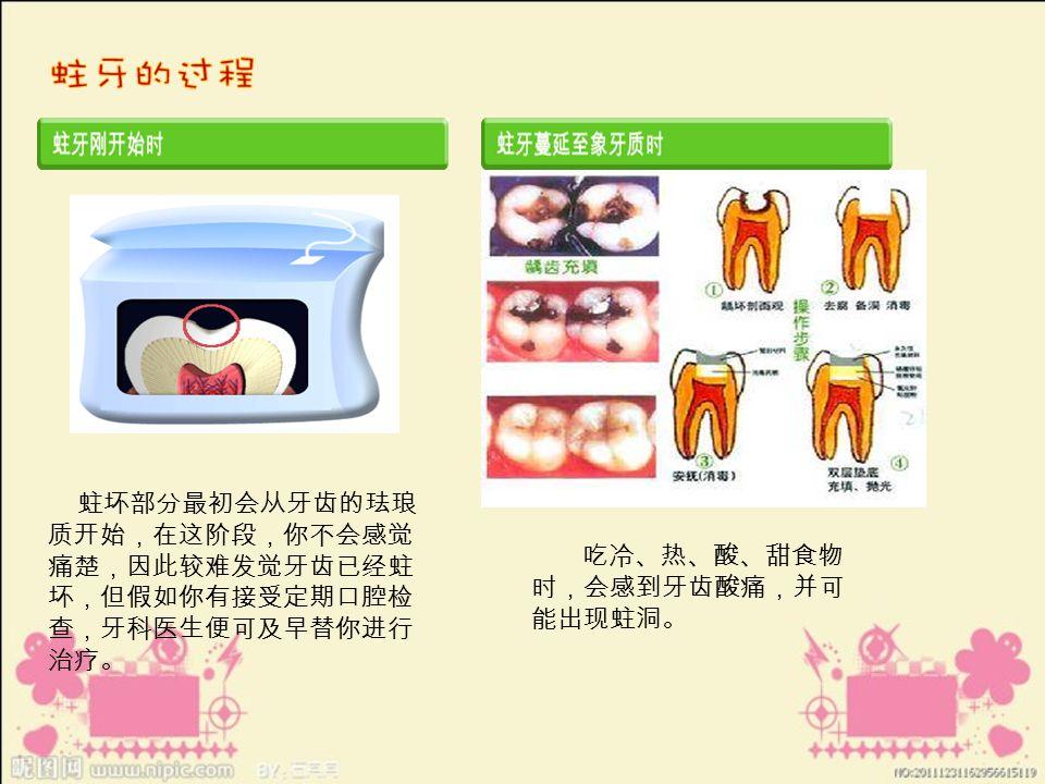 蛀坏部分最初会从牙齿的珐琅 质开始,在这阶段,你不会感觉 痛楚,因此较难发觉牙齿已经蛀 坏,但假如你有接受定期口腔检 查,牙科医生便可及早替你进行 治疗。 吃冷、热、酸、甜食物 时,会感到牙齿酸痛,并可 能出现蛀洞。