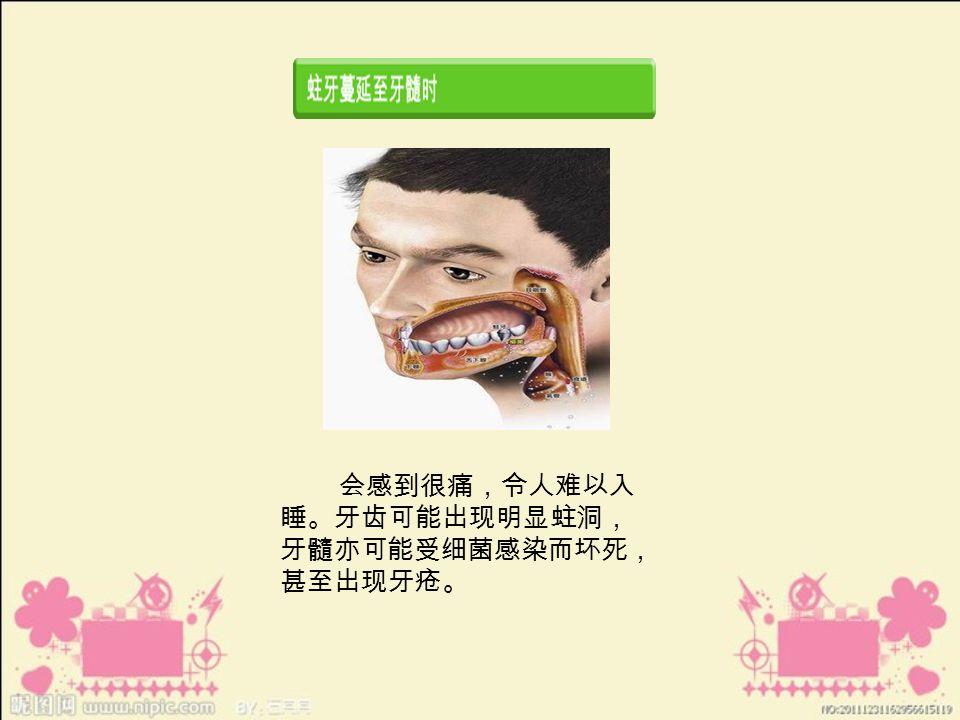 会感到很痛,令人难以入 睡。牙齿可能出现明显蛀洞, 牙髓亦可能受细菌感染而坏死, 甚至出现牙疮。