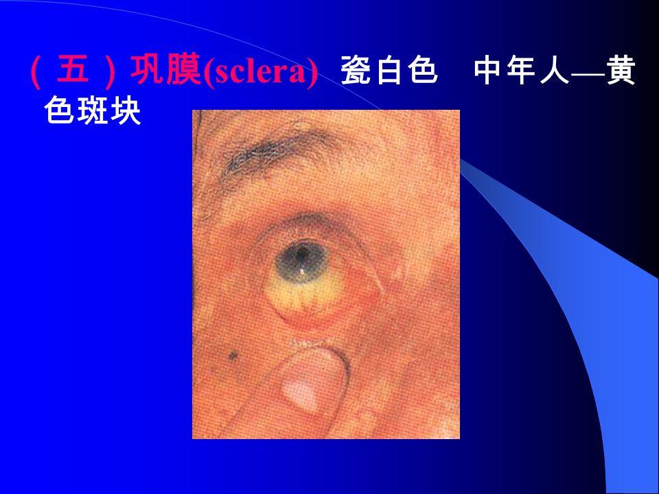 (五)巩膜 (sclera) 瓷白色 中年人 — 黄 色斑块