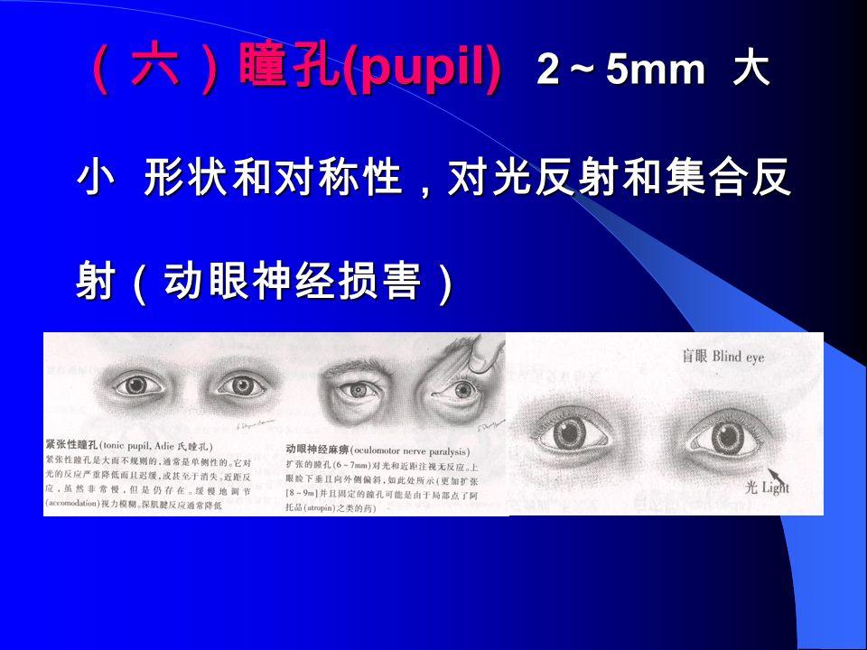 (六)瞳孔 (pupil) 2 ~ 5mm 大 小 形状和对称性,对光反射和集合反 射(动眼神经损害)