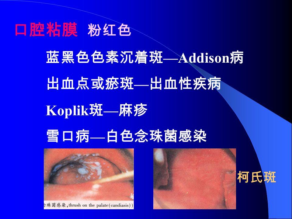 口腔粘膜 粉红色 蓝黑色色素沉着斑 —Addison 病 出血点或瘀斑 — 出血性疾病 Koplik 斑 — 麻疹 雪口病 — 白色念珠菌感染 柯氏斑