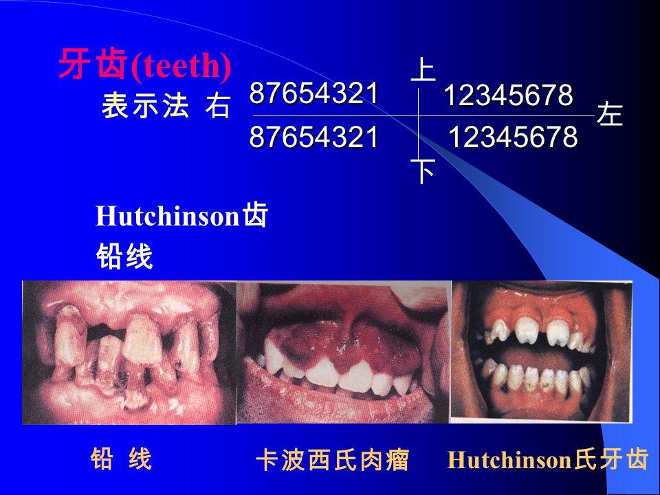 牙齿 (teeth) 表示法 右 87654321 12345678 左 上 下 8765432112345678 Hutchinson 齿 铅线 卡波西氏肉瘤 Hutchinson 氏牙齿