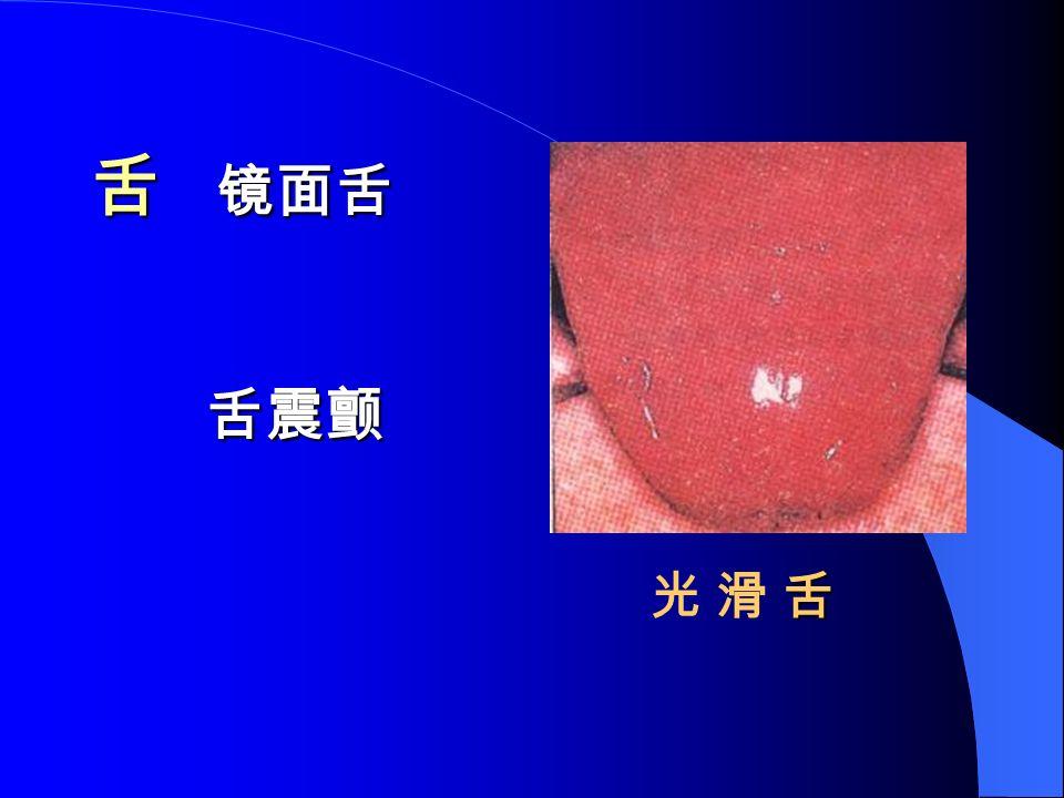 舌 镜面舌 舌震颤 舌光 滑 舌舌光 滑 舌