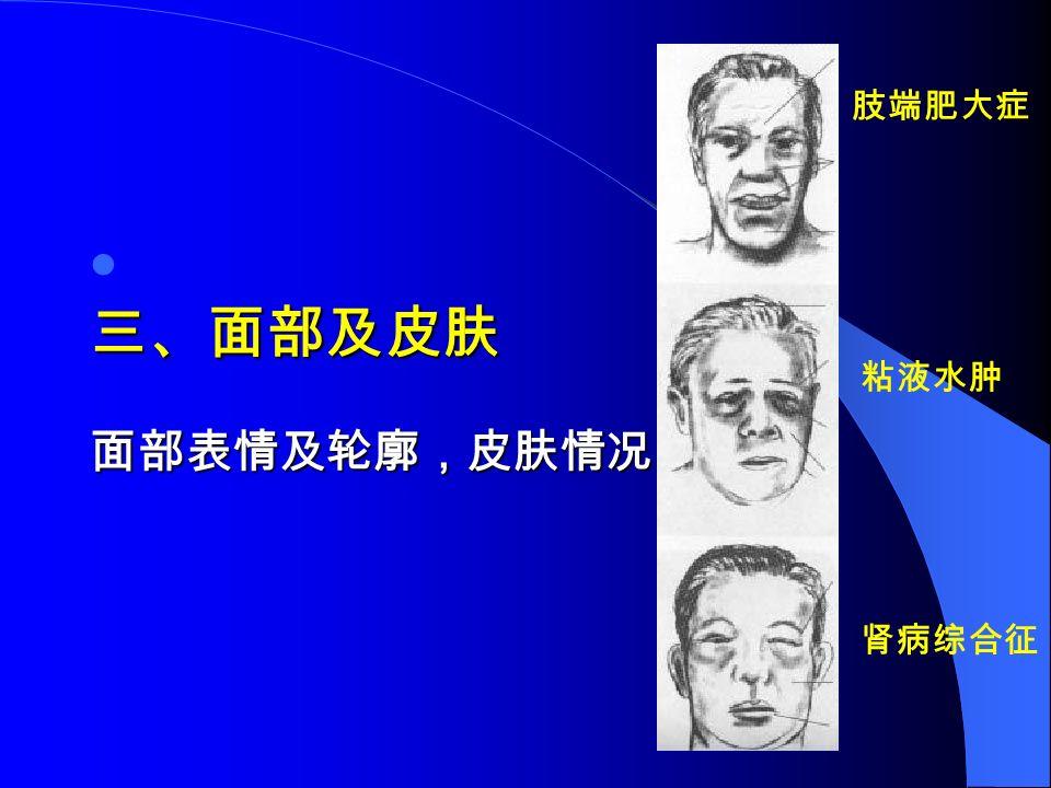 三、面部及皮肤 面部表情及轮廓,皮肤情况 肢端肥大症 粘液水肿 肾病综合征