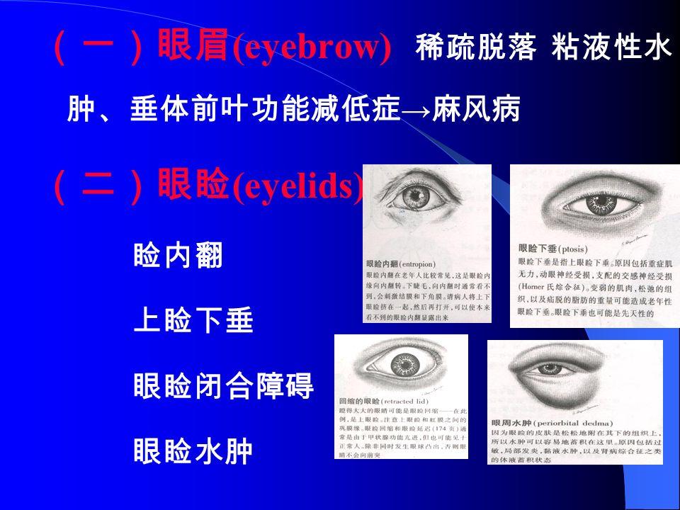 (一)眼眉 (eyebrow) 稀疏脱落 粘液性水 肿、垂体前叶功能减低症 → 麻风病 (二)眼睑 (eyelids) 睑内翻 上睑下垂 眼睑闭合障碍 眼睑水肿