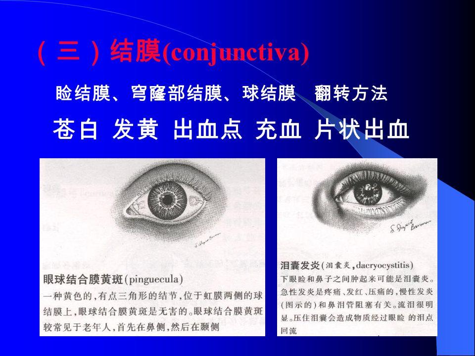 (三)结膜 (conjunctiva) 睑结膜、穹窿部结膜、球结膜 翻转方法 苍白 发黄 出血点 充血 片状出血