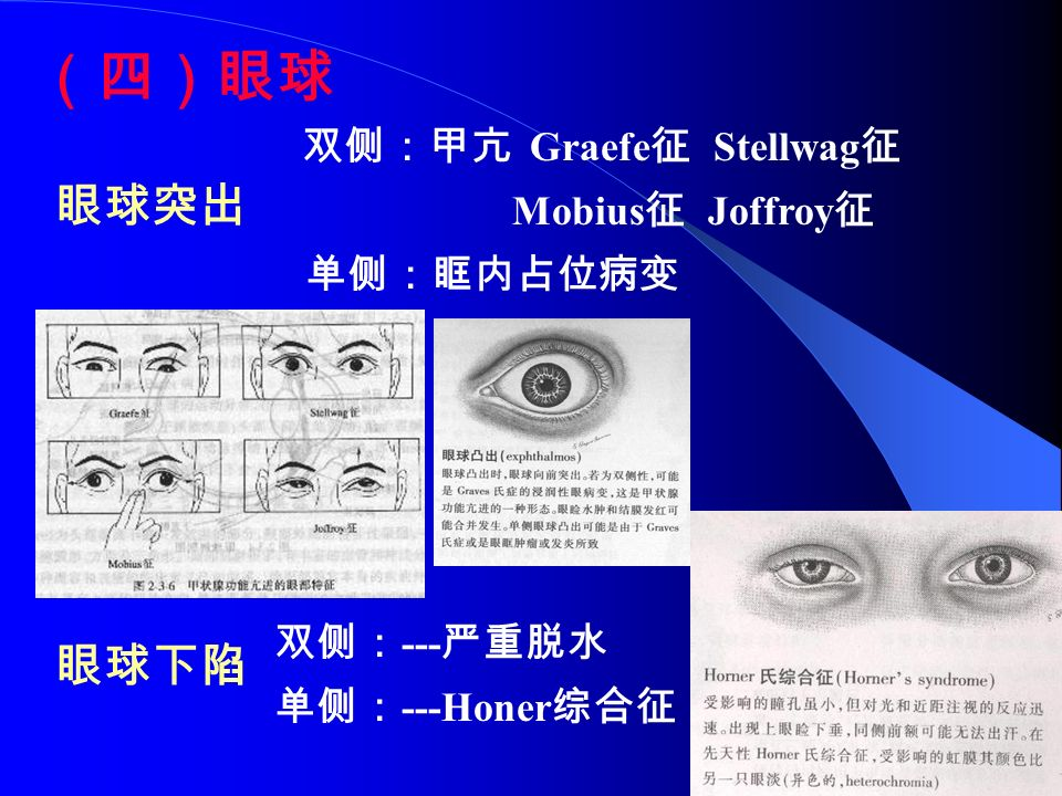 (四)眼球 双侧:甲亢 Graefe 征 Stellwag 征 Mobius 征 Joffroy 征 单侧:眶内占位病变 双侧: --- 严重脱水 单侧: ---Honer 综合征 眼球突出 眼球下陷