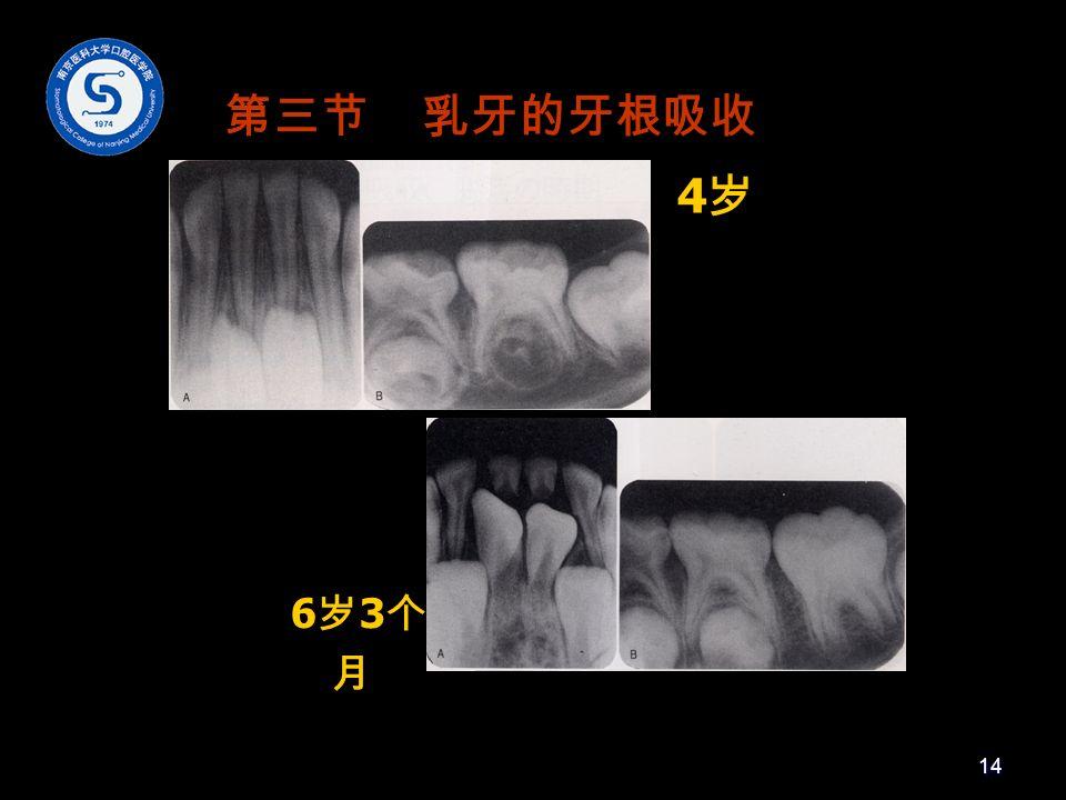 4岁4岁 6岁3个月6岁3个月 第三节 乳牙的牙根吸收 14