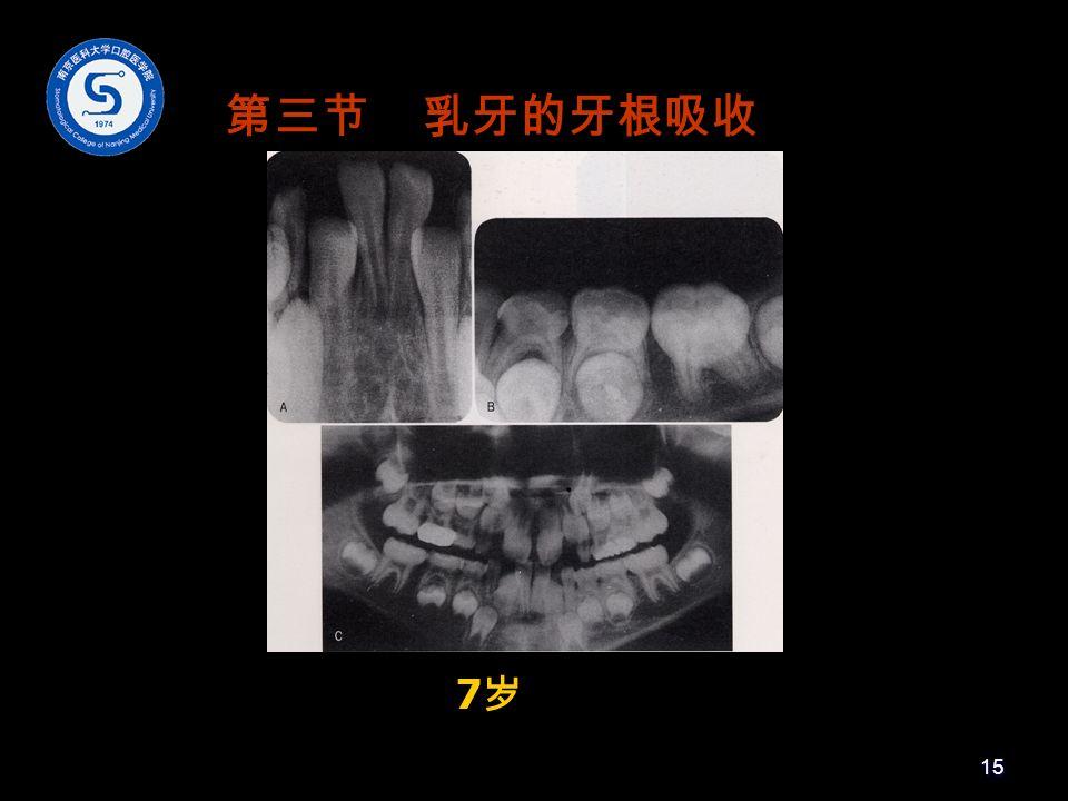 7岁7岁 第三节 乳牙的牙根吸收 15