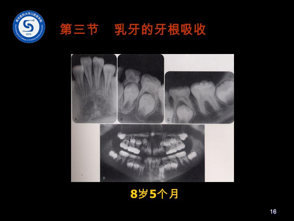 8 岁 5 个月 第三节 乳牙的牙根吸收 16