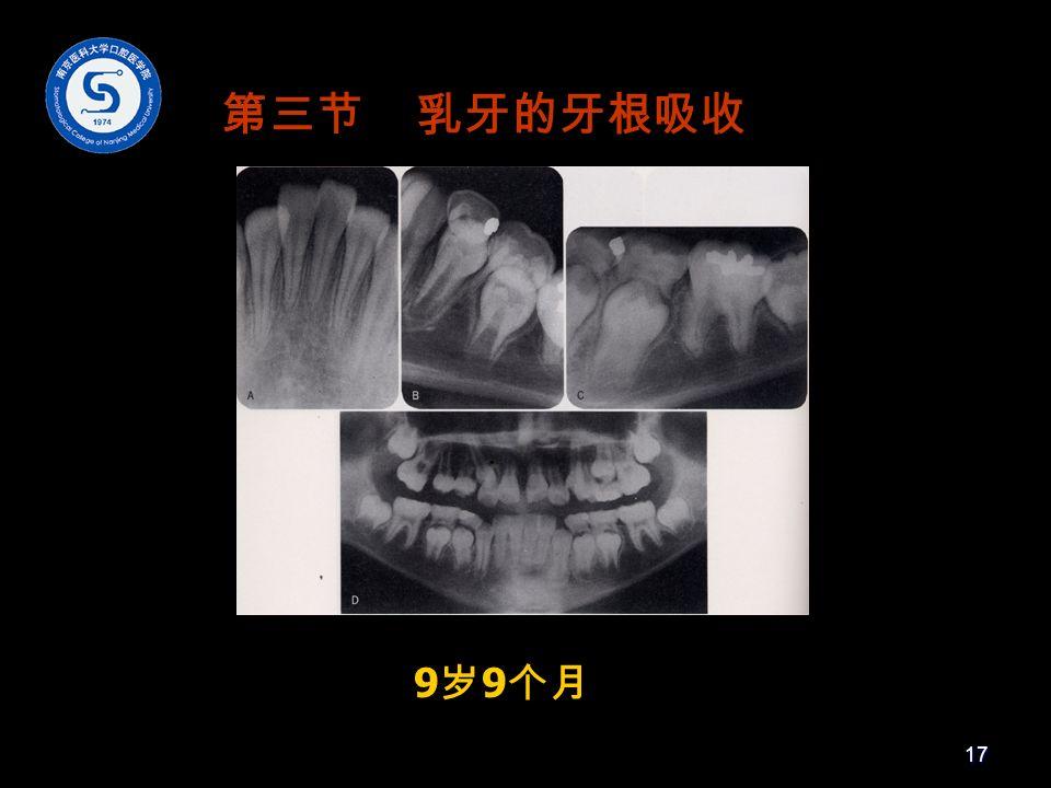 9 岁 9 个月 第三节 乳牙的牙根吸收 17