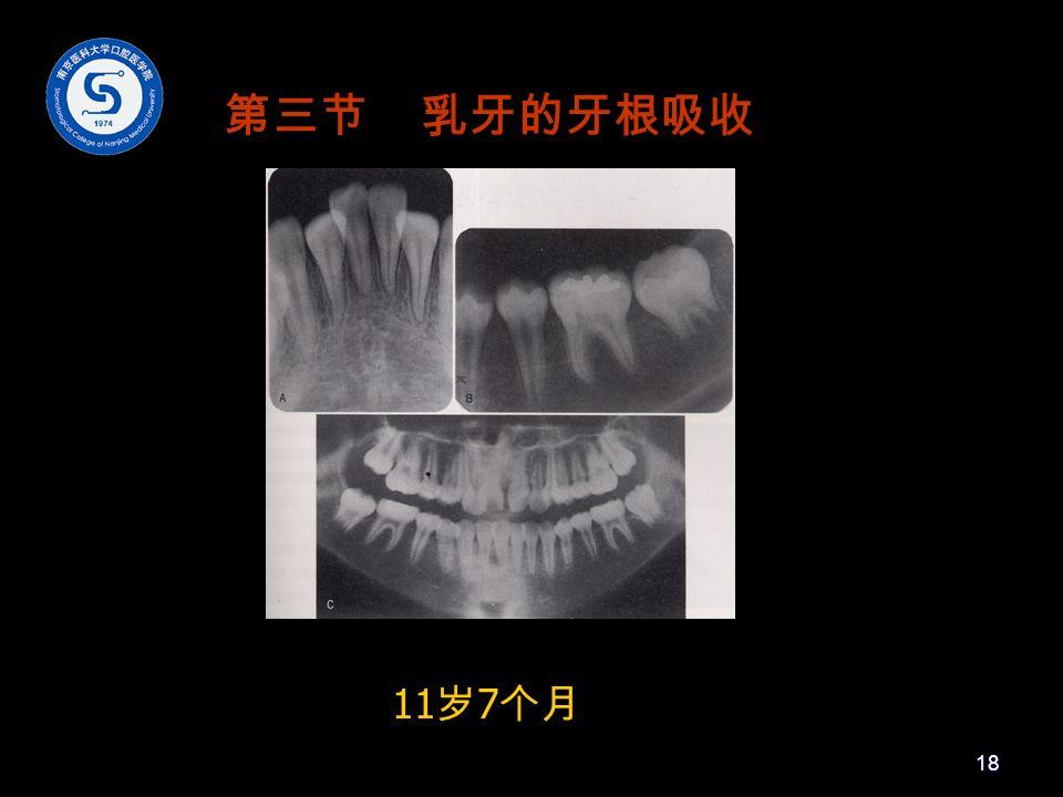 11 岁 7 个月 第三节 乳牙的牙根吸收 18