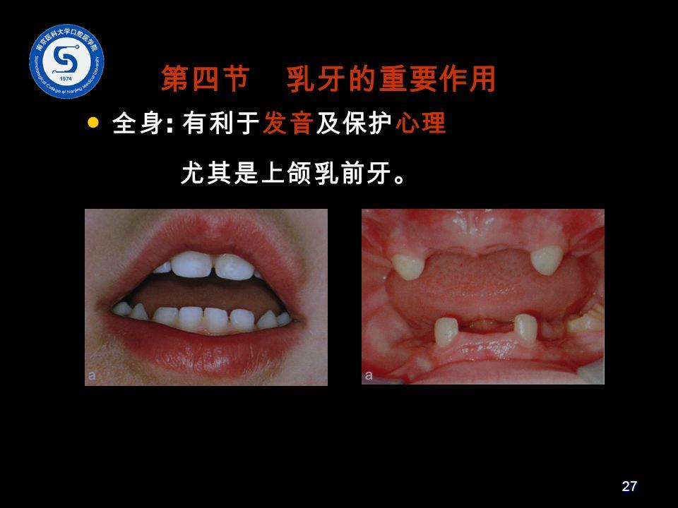 第四节 乳牙的重要作用 全身 : 有利于发音及保护心理 尤其是上颌乳前牙。 27