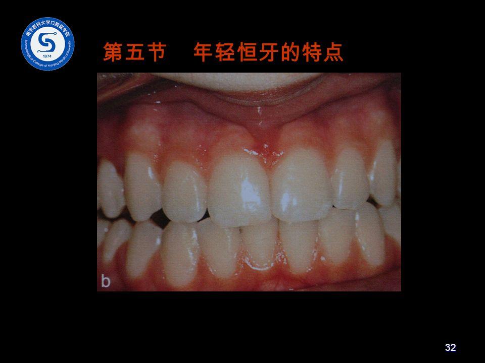 第五节 年轻恒牙的特点 32