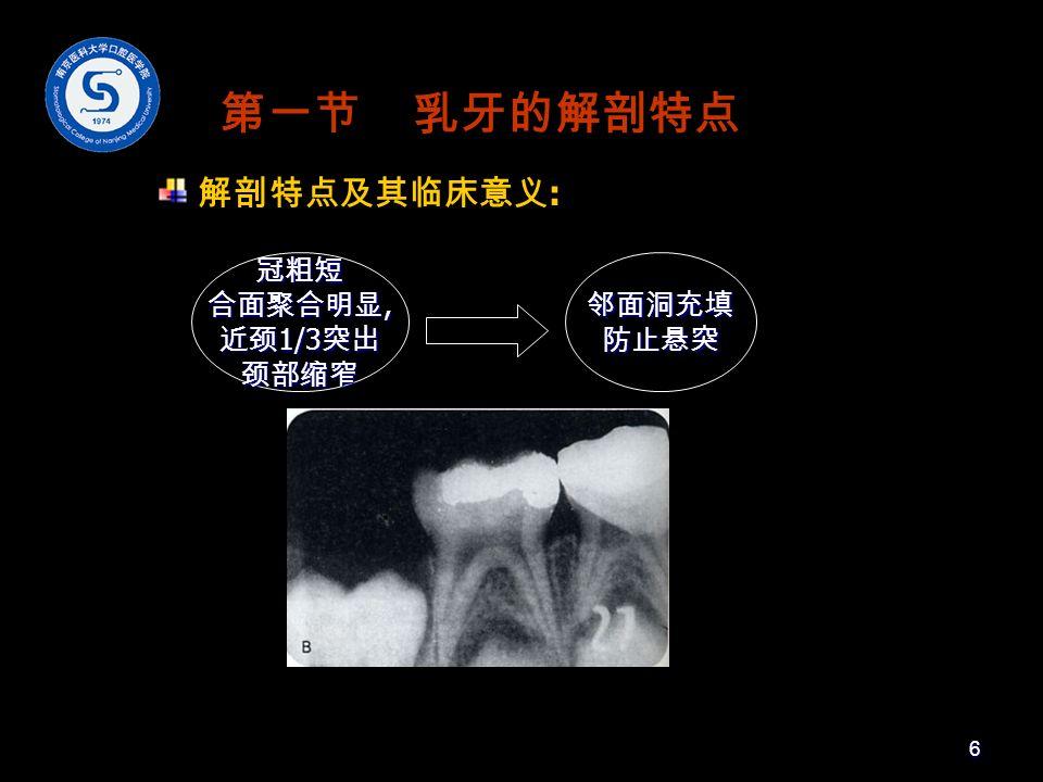 第一节 乳牙的解剖特点 解剖特点及其临床意义 : 冠粗短 合面聚合明显, 近颈 1/3 突出 颈部缩窄邻面洞充填防止悬突 6