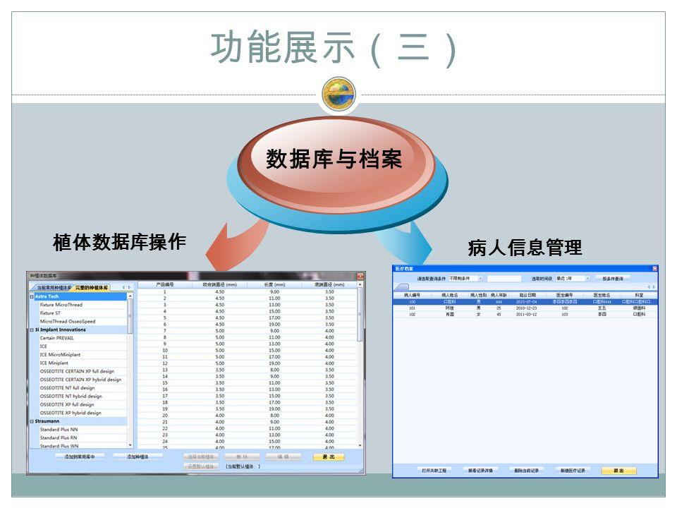 功能展示(三) 植体数据库操作 数据库与档案 病人信息管理