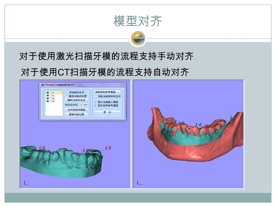 模型对齐 对于使用激光扫描牙模的流程支持手动对齐 对于使用 CT 扫描牙模的流程支持自动对齐