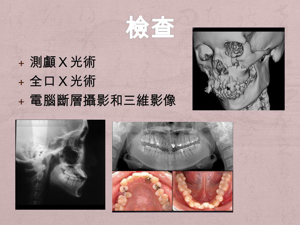+ 測顱X光術 + 全口X光術 + 電腦斷層攝影和三維影像