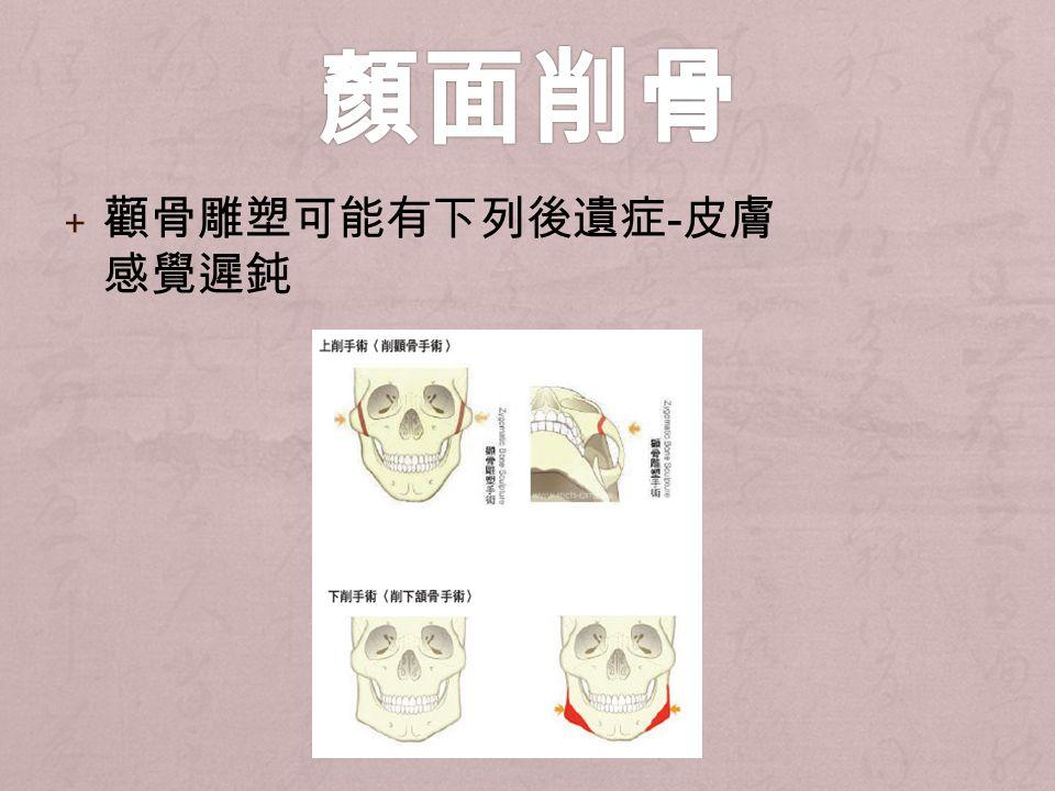 + 顴骨雕塑可能有下列後遺症 - 皮膚 感覺遲鈍