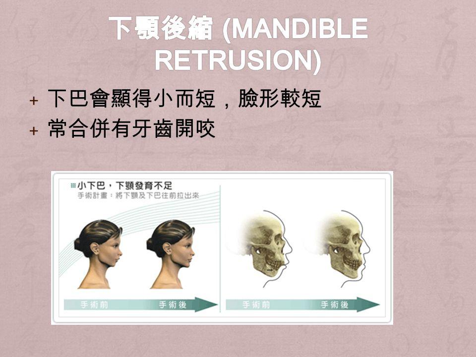 + 下巴會顯得小而短,臉形較短 + 常合併有牙齒開咬